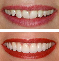 Porcelain Veneers Orlando Before and After